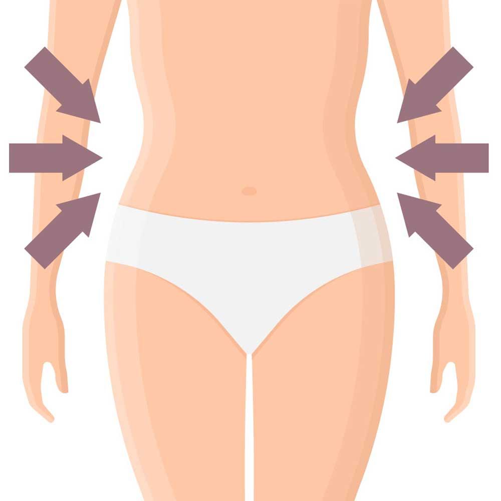 Kryolipolyse Behandlung nachher